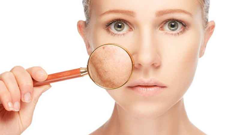 Remove Skin Blemishes With These Homemade Treatments