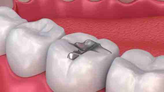 What Is Tooth Filling