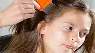 How To Get Rid Of Lice Featured Images