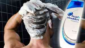 Does Head And Shoulders Cause Hair Loss